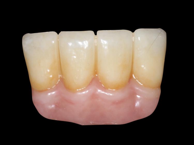 Implantes con encía artificial