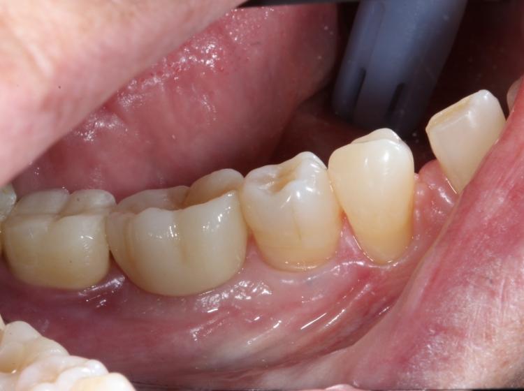 Implantes Unitarios
